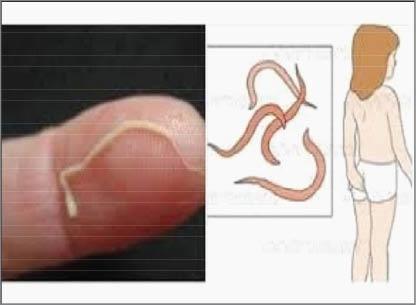 الـبـيـنـة الجديدة - الديدان الدبوسية .. أسبابها وأعراضها و كيفية الوقاية  منها
